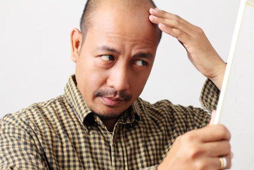 育毛剤の選び方とは?薄毛の原因からアプローチするのが正解だった?