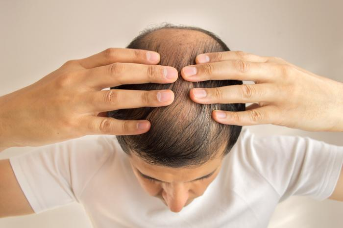 毛根で抜け毛の原因が分かる!?5つのタイプと適切な対処法を紹介!
