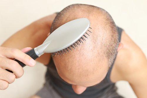 抜け毛対策したい男性・女性必見!オススメの育毛剤と正しいシャンプー方法は?