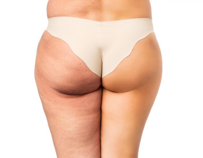 お尻を脂肪吸引したい!気になる費用・リスク・美容外科選びを全解説!