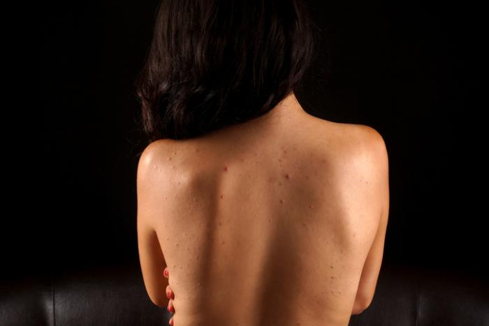 【2ヶ月徹底検証】ルフィーナの効果を大暴露!背中ニキビ・ニキビ跡のビフォーアフター公開